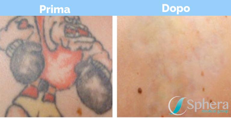 Spheramedlaser | Rimozione Tatuaggi | Roma, Frosinone, Viterbo
